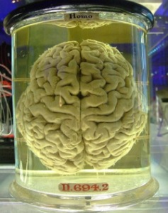 http://static.tvtropes.org/pmwiki/pub/images/474px-human-brain_257.jpg